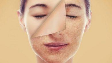 Photo of كيفية علاج البشرة الجافة